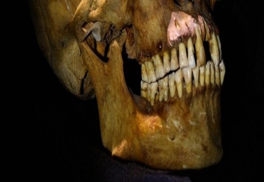 Perito en Estomatología Forense