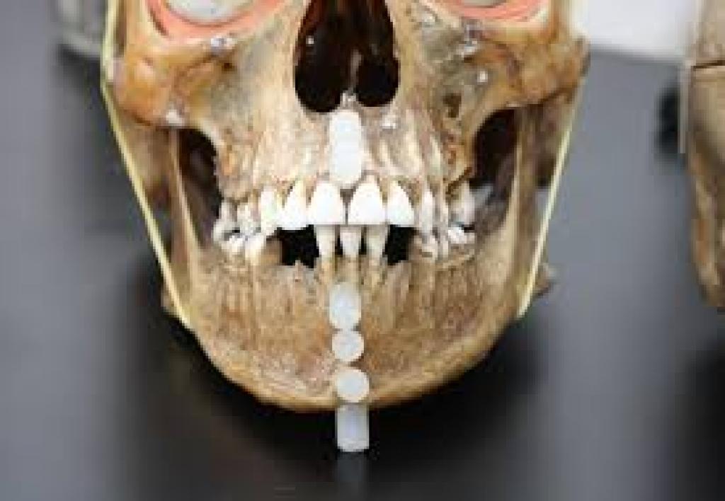 Perito en Odontología Forense